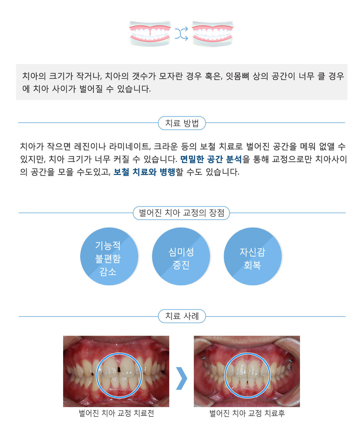벌어진 치아 내용2.jpg